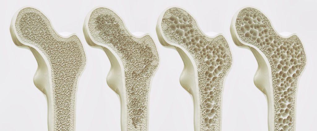 La régénération de l'os est altérée dans le cadre de l'ostéoporose